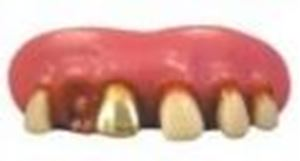 Picture of Sp. Offer - Billy Bob Teeth - Gold Miner
