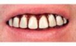 Picture of Sp. Offer - Billy Bob Teeth - Full Grill