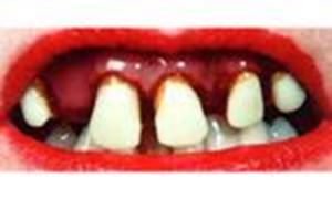 Picture of Sp. Offer - Billy Bob Teeth - Betty Bob
